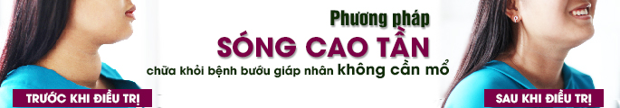 phuong-phap-dieu-tri-buou-co-bang-song-cao-tan